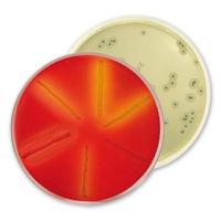 Chromogenne podłoża do wykrywania Listerii species
